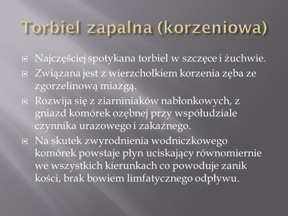Torbiel zapalna (korzeniowa)