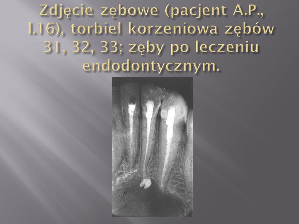 Zdjęcie zębowe (pacjent A. P. , l