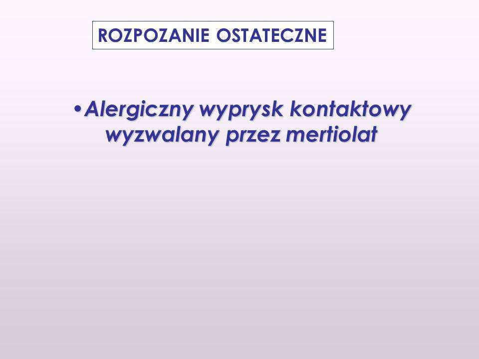 Alergiczny wyprysk kontaktowy wyzwalany przez mertiolat