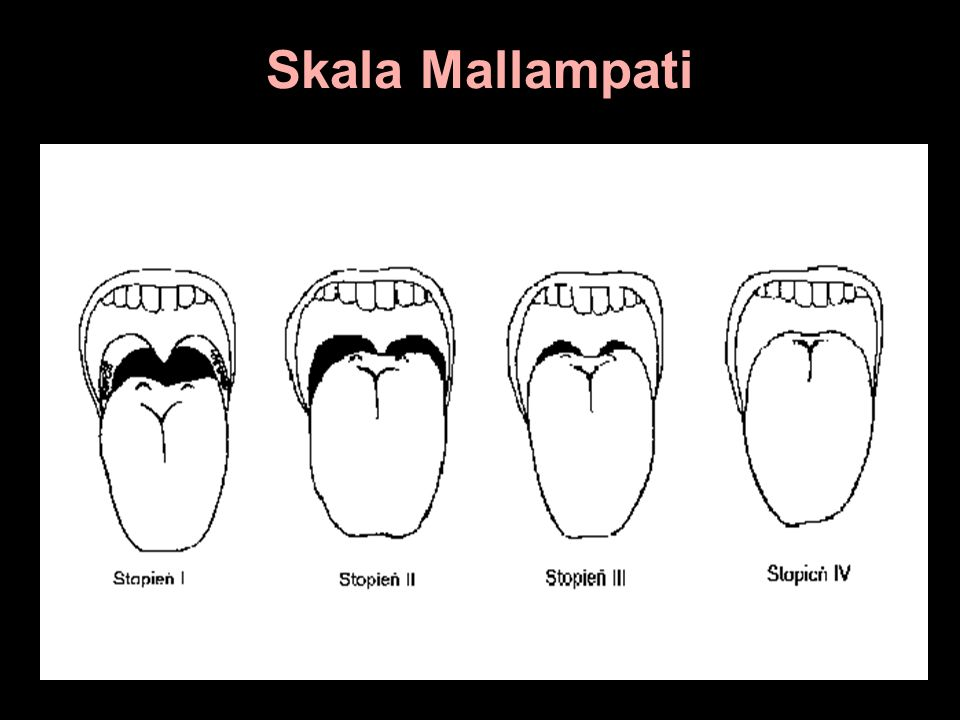 Skala Mallampati
