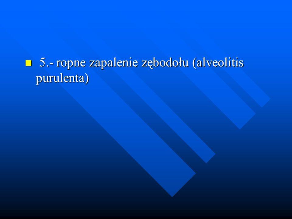 5.- ropne zapalenie zębodołu (alveolitis purulenta)