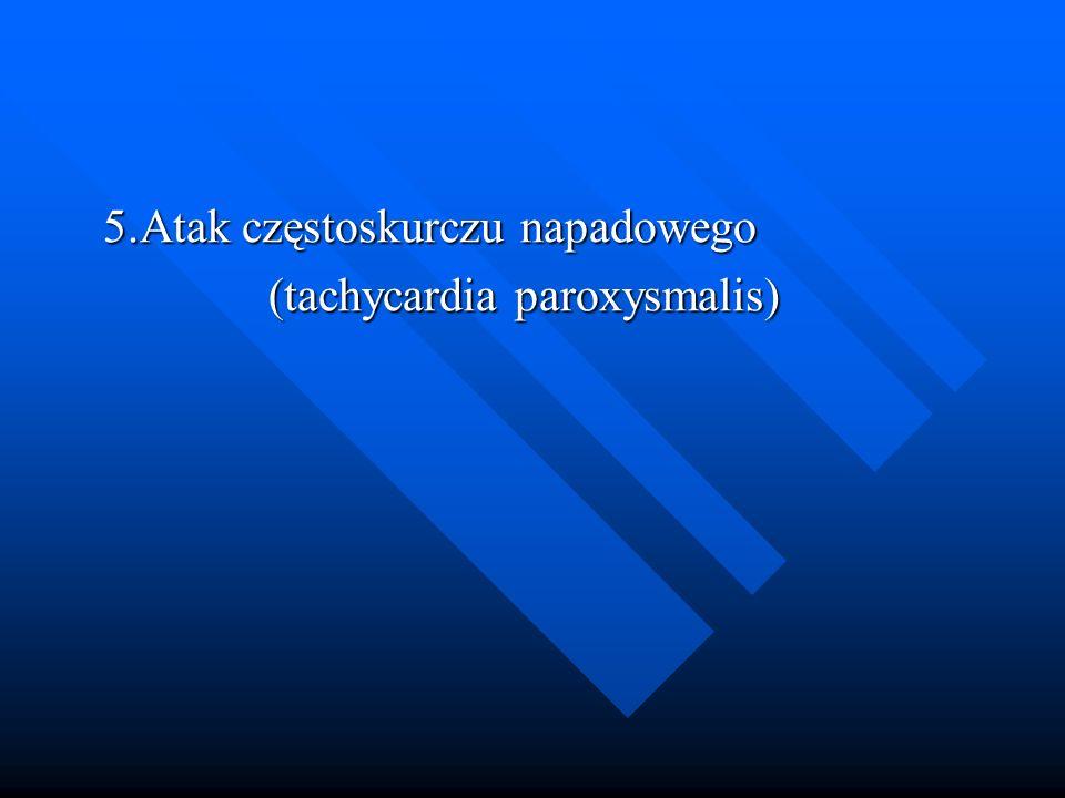 5.Atak częstoskurczu napadowego (tachycardia paroxysmalis)