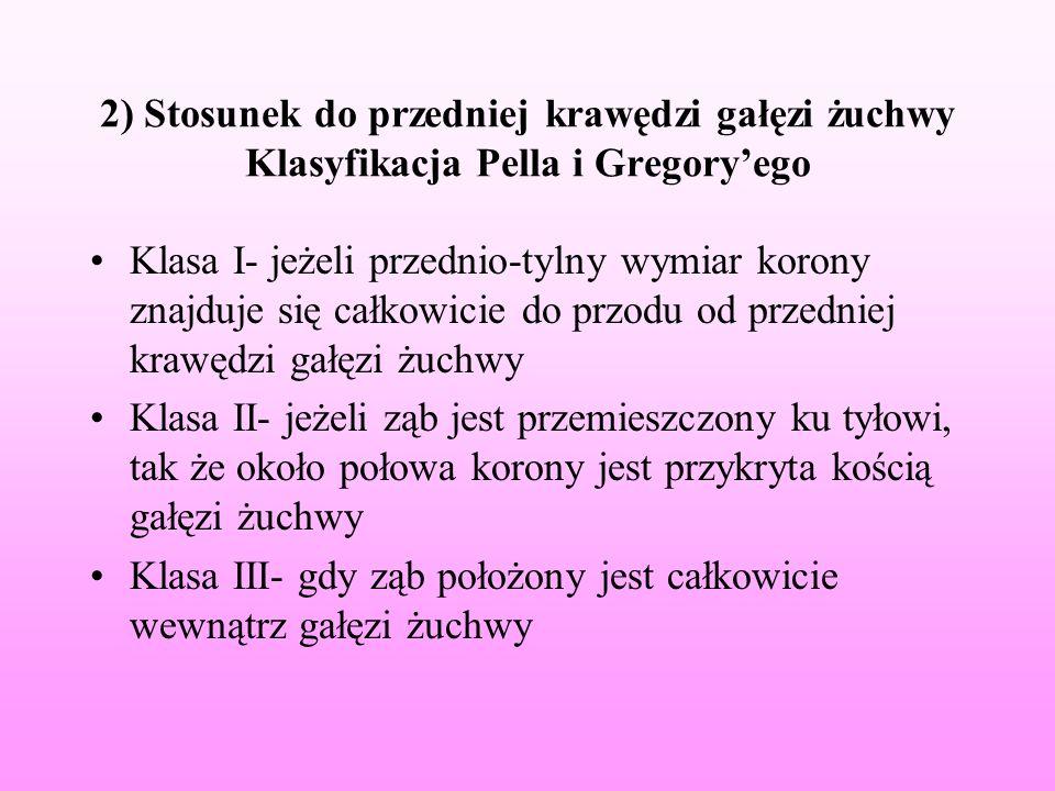2) Stosunek do przedniej krawędzi gałęzi żuchwy Klasyfikacja Pella i Gregory'ego