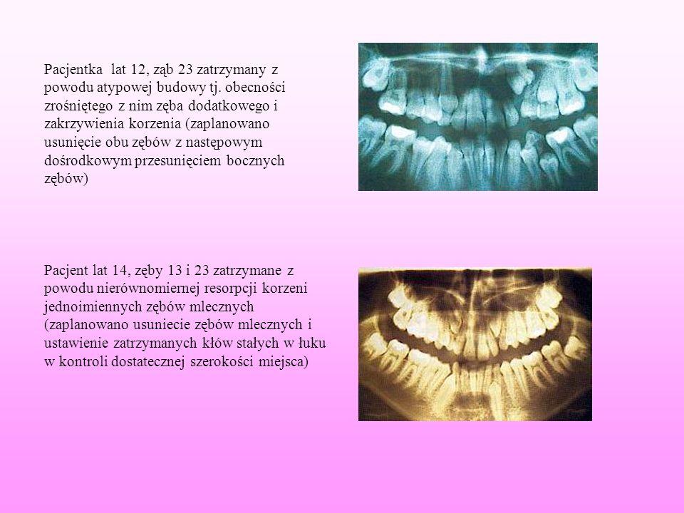 Pacjentka lat 12, ząb 23 zatrzymany z powodu atypowej budowy tj