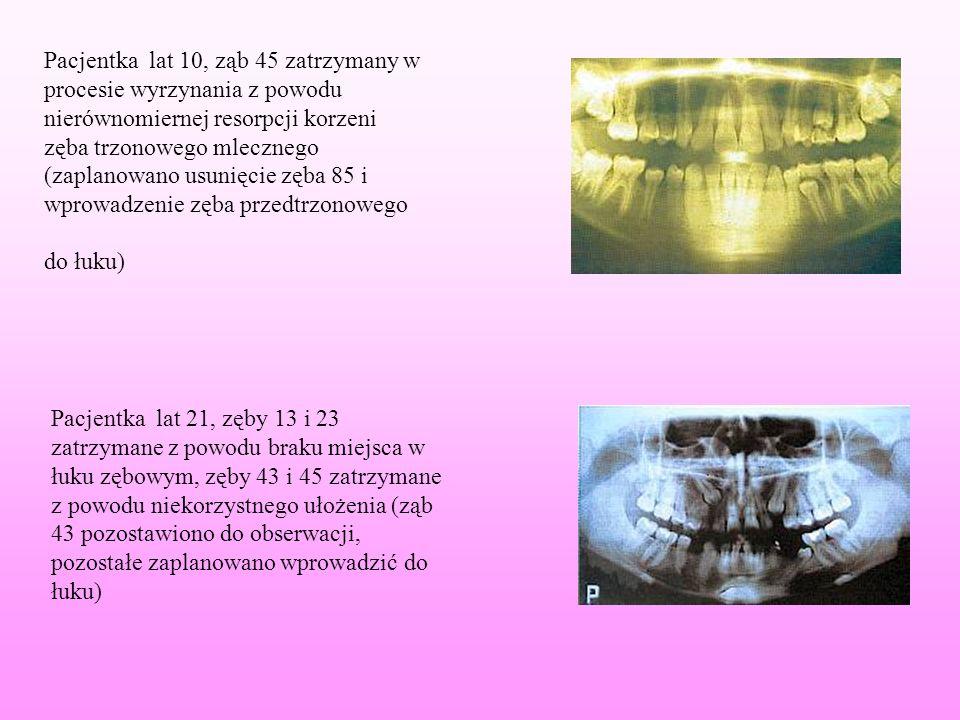 Pacjentka lat 10, ząb 45 zatrzymany w procesie wyrzynania z powodu nierównomiernej resorpcji korzeni zęba trzonowego mlecznego (zaplanowano usunięcie zęba 85 i wprowadzenie zęba przedtrzonowego do łuku)
