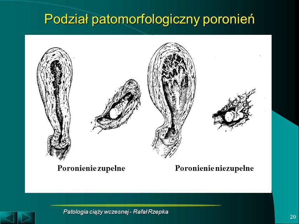 Podział patomorfologiczny poronień