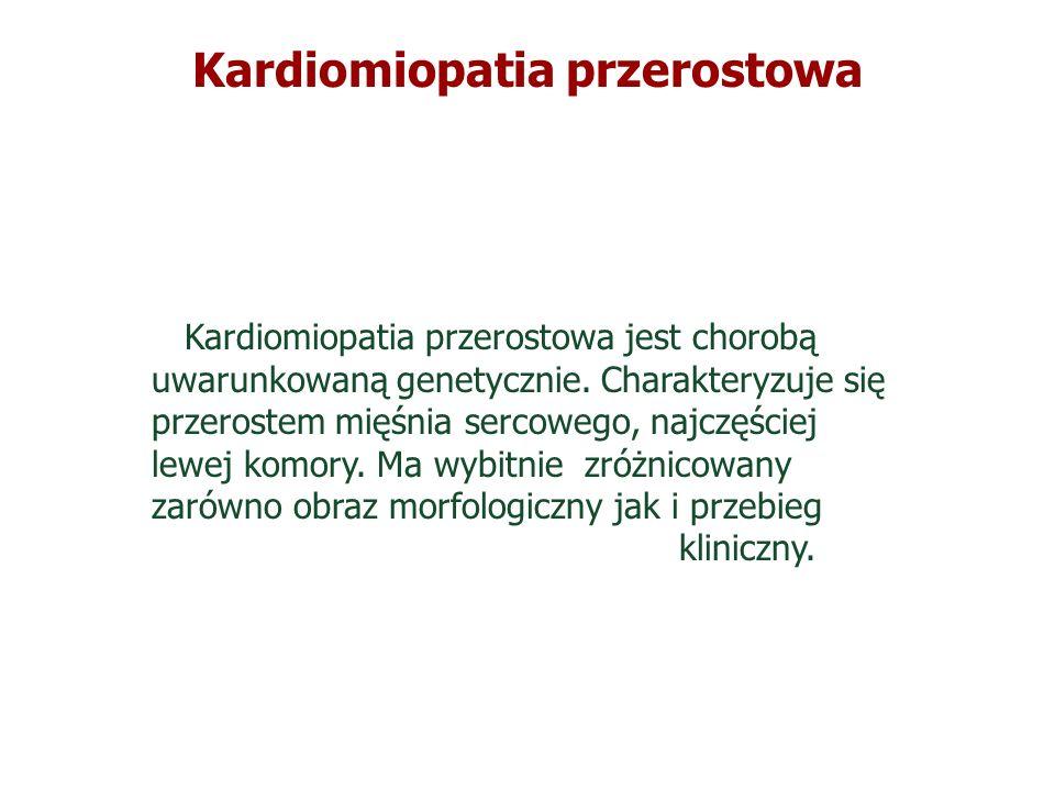 Kardiomiopatia przerostowa
