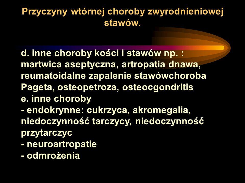 Przyczyny wtórnej choroby zwyrodnieniowej stawów.