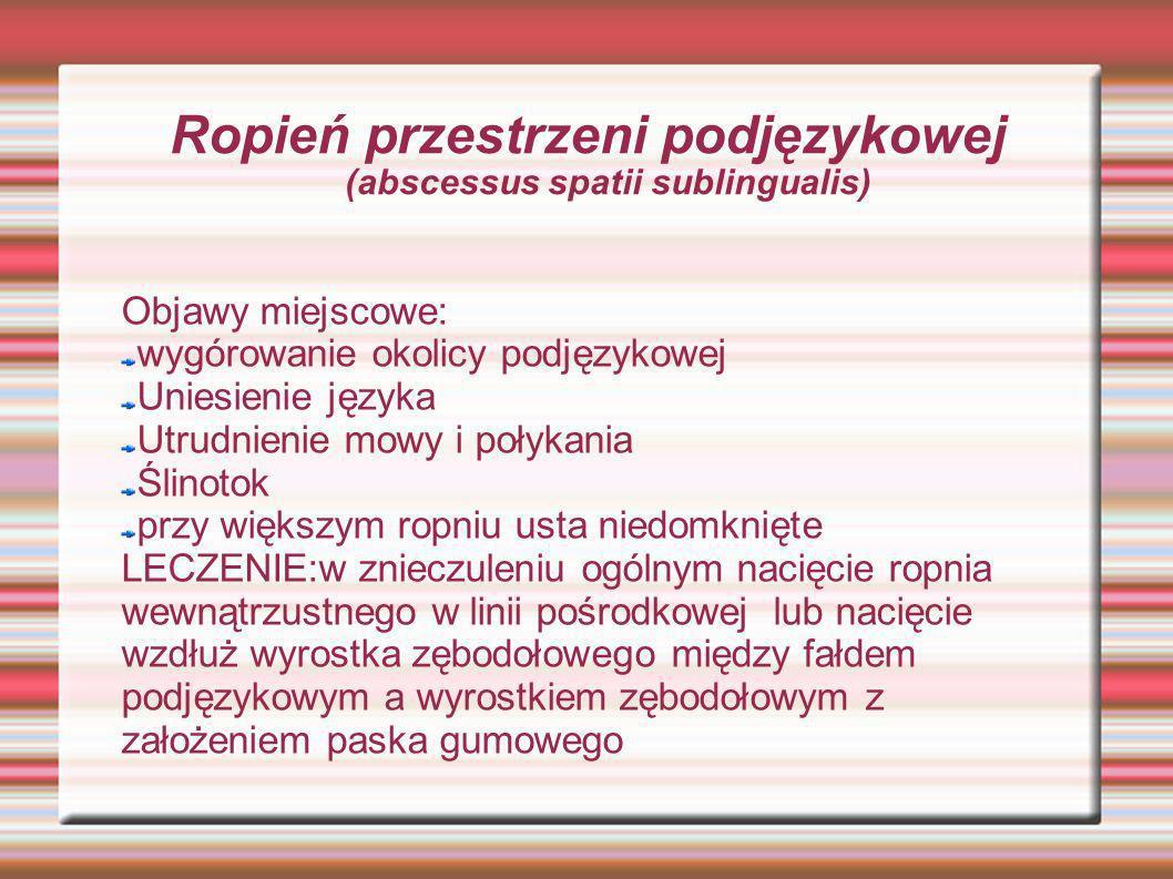 Ropień przestrzeni podjęzykowej (abscessus spatii sublingualis)