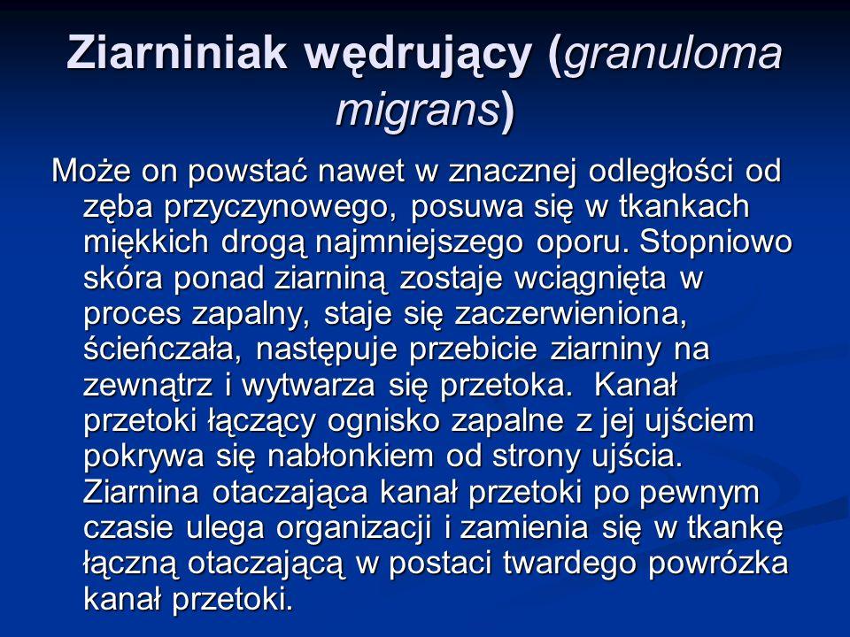 Ziarniniak wędrujący (granuloma migrans)