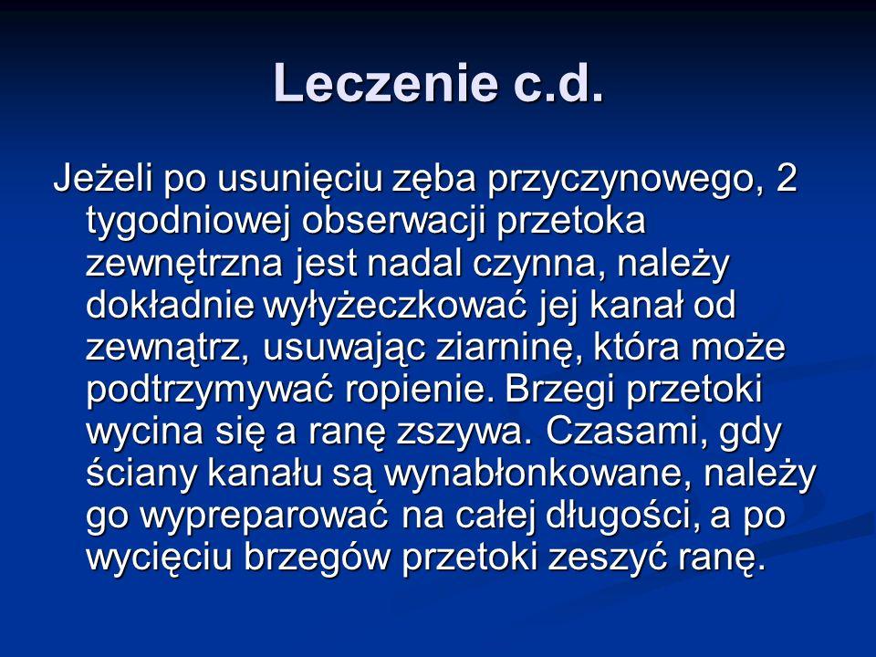 Leczenie c.d.