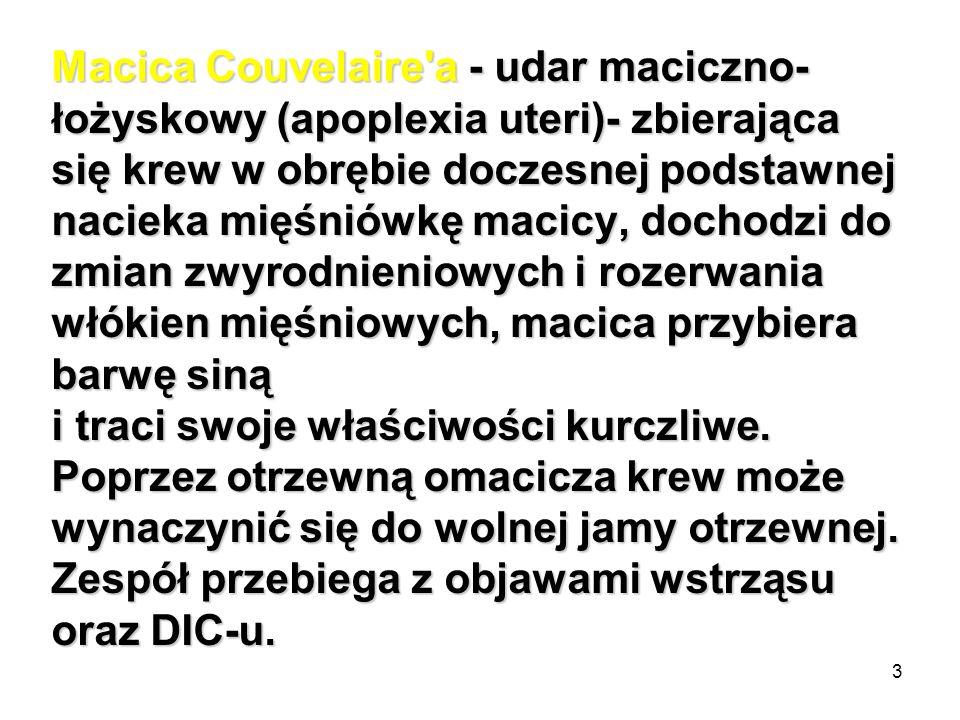 Macica Couvelaire a - udar maciczno-łożyskowy (apoplexia uteri)- zbierająca się krew w obrębie doczesnej podstawnej nacieka mięśniówkę macicy, dochodzi do zmian zwyrodnieniowych i rozerwania włókien mięśniowych, macica przybiera barwę siną i traci swoje właściwości kurczliwe.