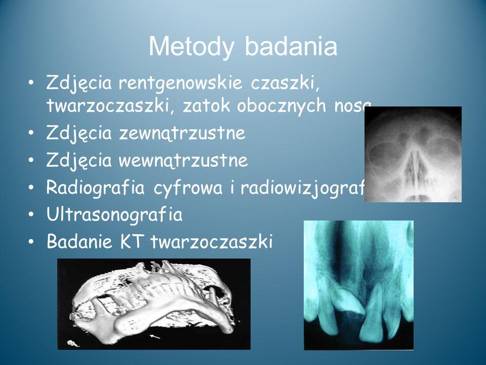 Metody badania Zdjęcia rentgenowskie czaszki, twarzoczaszki, zatok obocznych nosa. Zdjęcia zewnątrzustne.