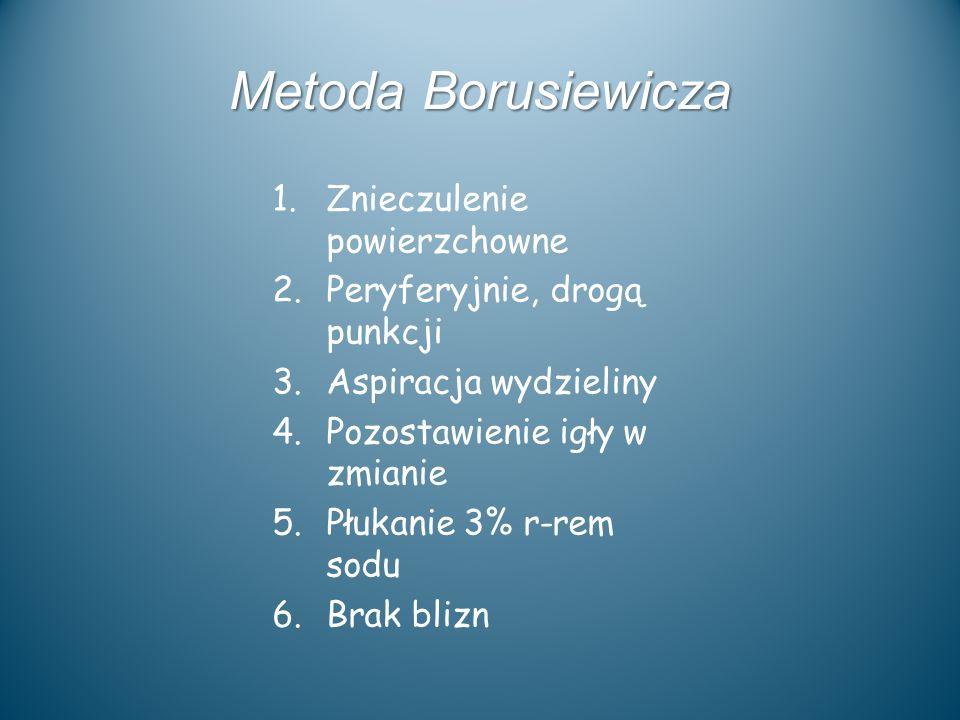 Metoda Borusiewicza Znieczulenie powierzchowne