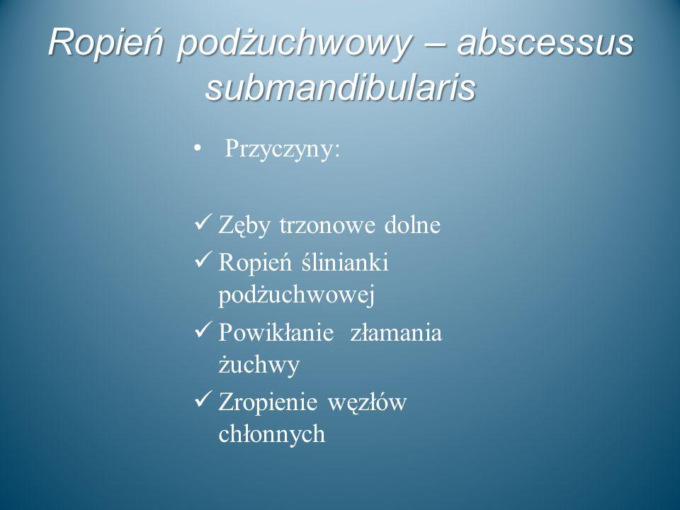 Ropień podżuchwowy – abscessus submandibularis