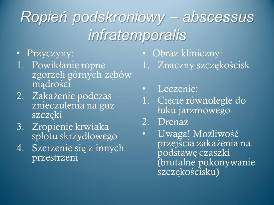 Ropień podskroniowy – abscessus infratemporalis