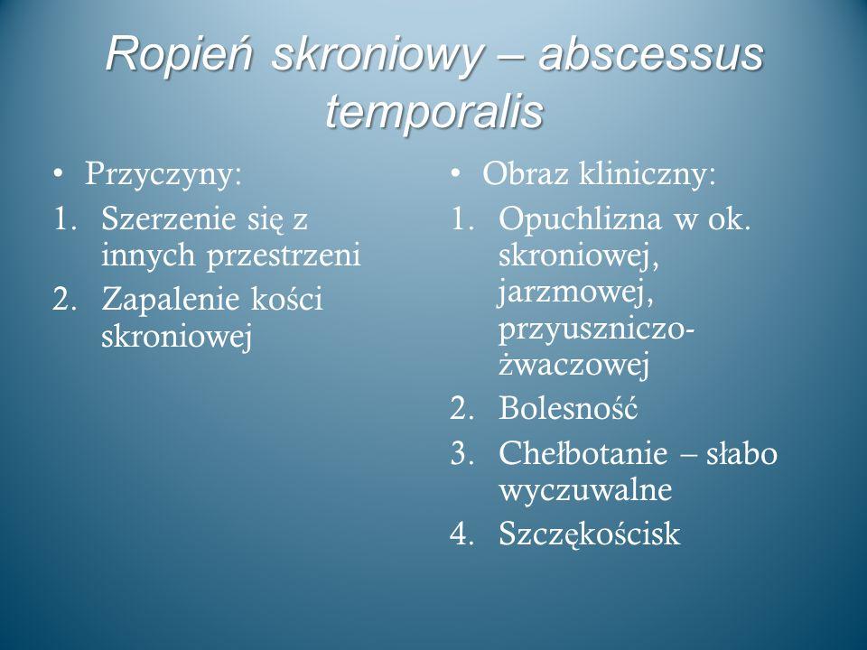 Ropień skroniowy – abscessus temporalis
