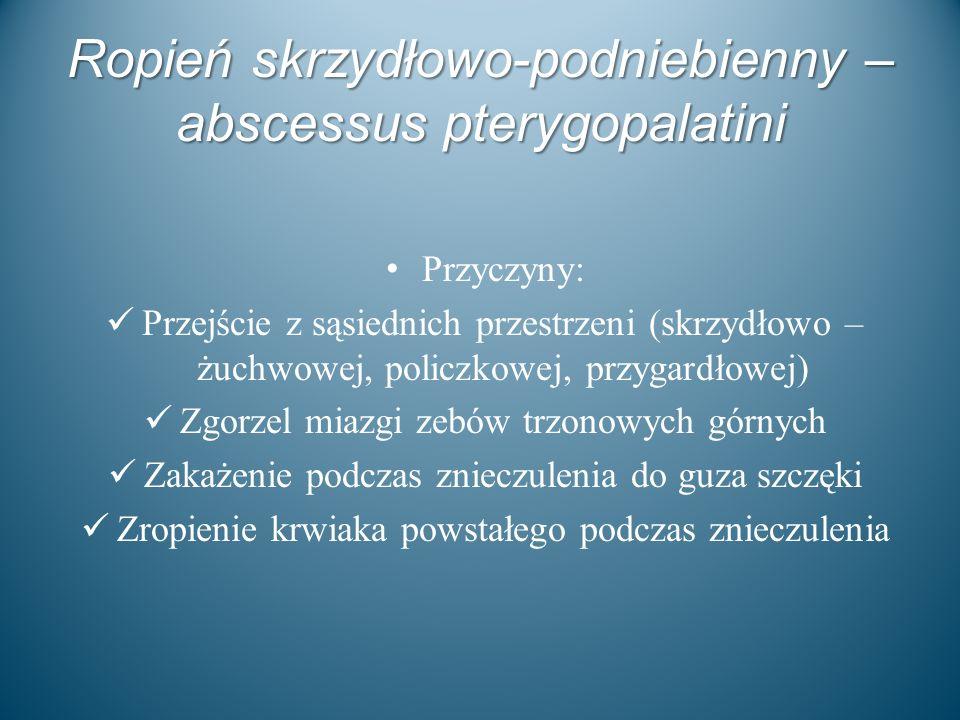 Ropień skrzydłowo-podniebienny – abscessus pterygopalatini