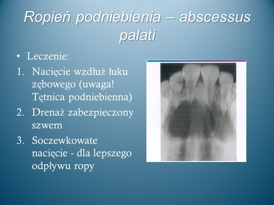 Ropień podniebienia – abscessus palati