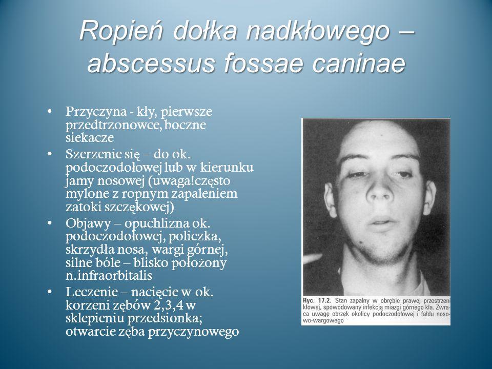 Ropień dołka nadkłowego – abscessus fossae caninae