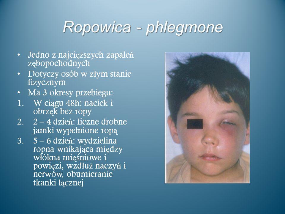 Ropowica - phlegmone Jedno z najcięższych zapaleń zębopochodnych