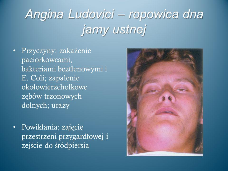 Angina Ludovici – ropowica dna jamy ustnej
