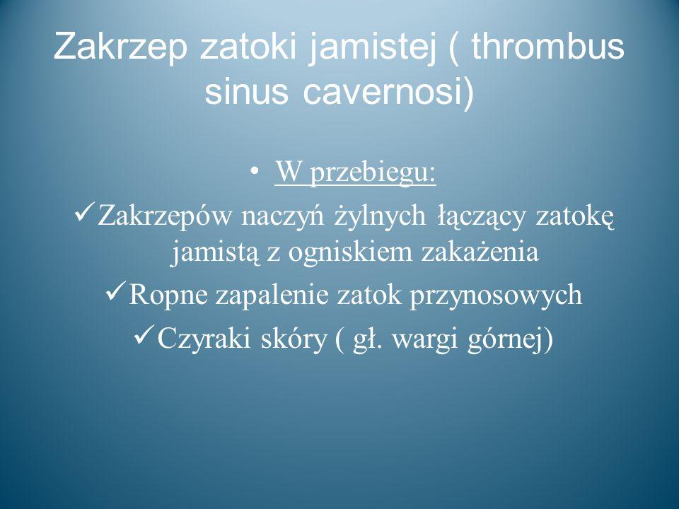 Zakrzep zatoki jamistej ( thrombus sinus cavernosi)
