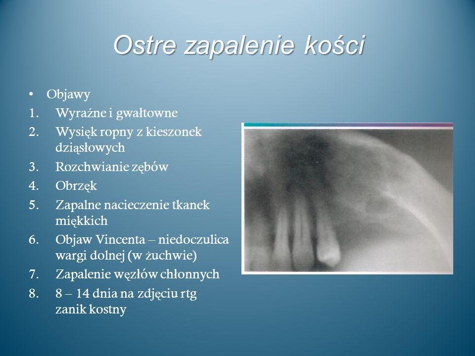 Ostre zapalenie kości Objawy Wyraźne i gwałtowne
