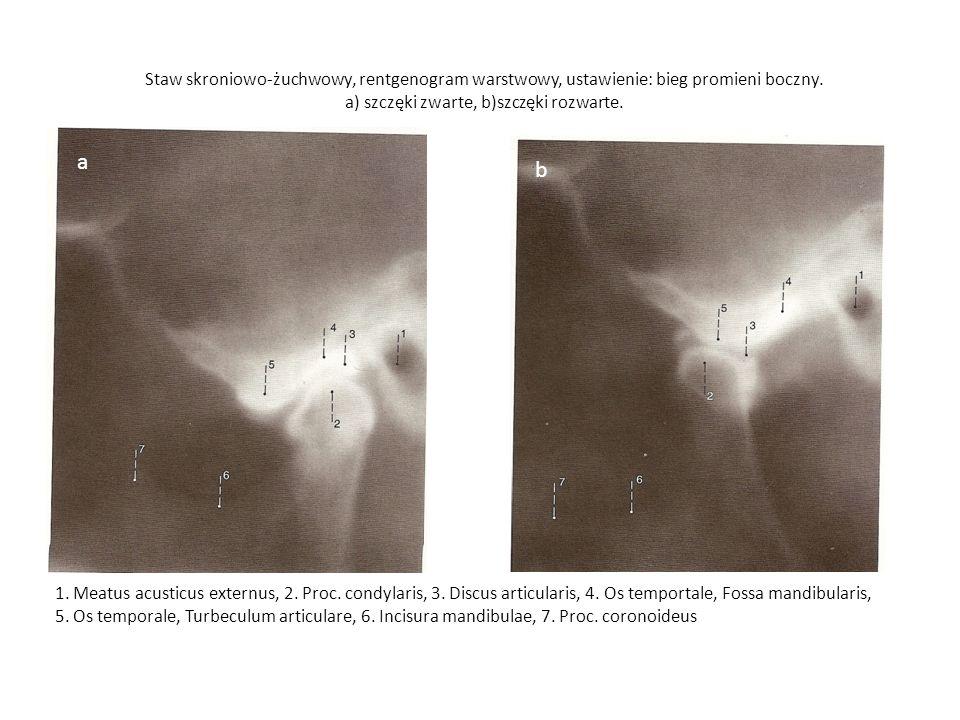 Staw skroniowo-żuchwowy, rentgenogram warstwowy, ustawienie: bieg promieni boczny. a) szczęki zwarte, b)szczęki rozwarte.