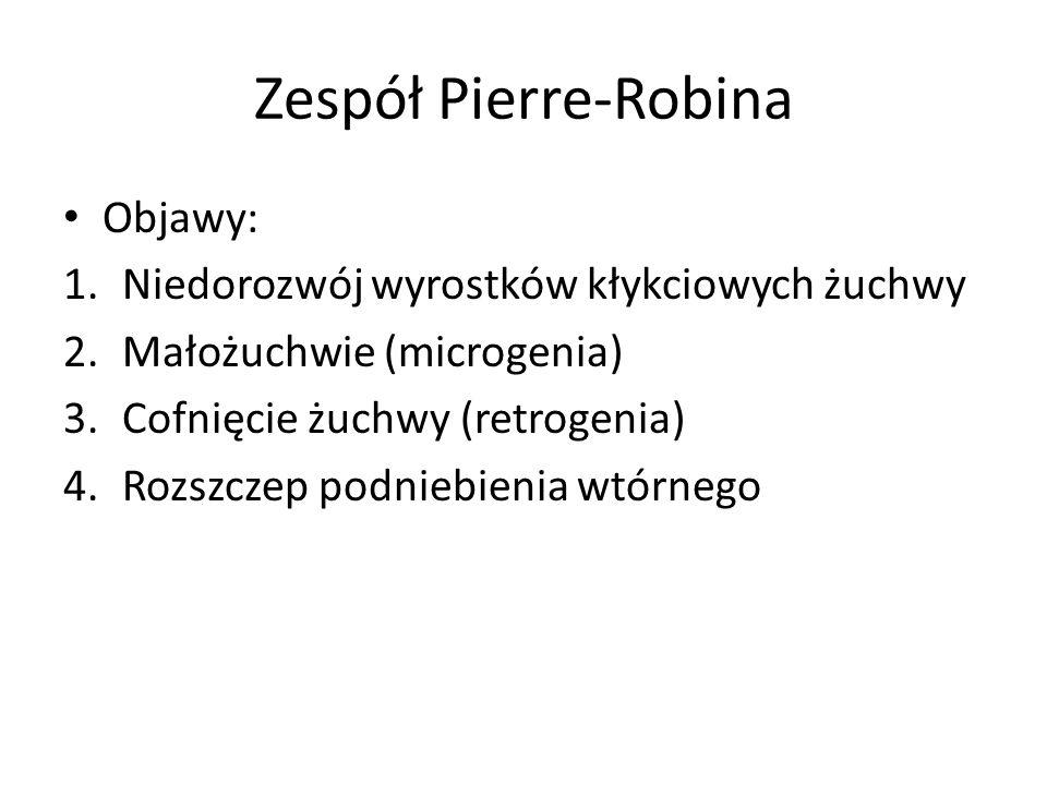 Zespół Pierre-Robina Objawy: Niedorozwój wyrostków kłykciowych żuchwy