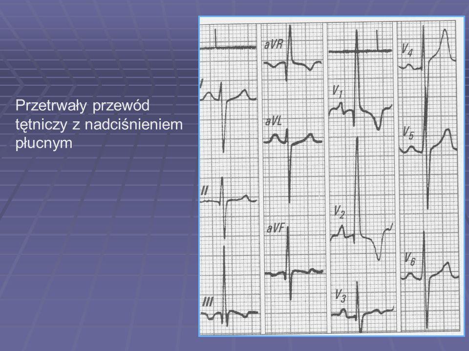 Przetrwały przewód tętniczy z nadciśnieniem płucnym