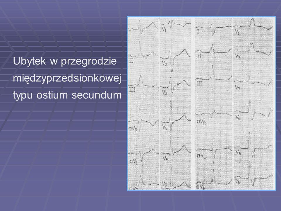 Ubytek w przegrodzie międzyprzedsionkowej typu ostium secundum