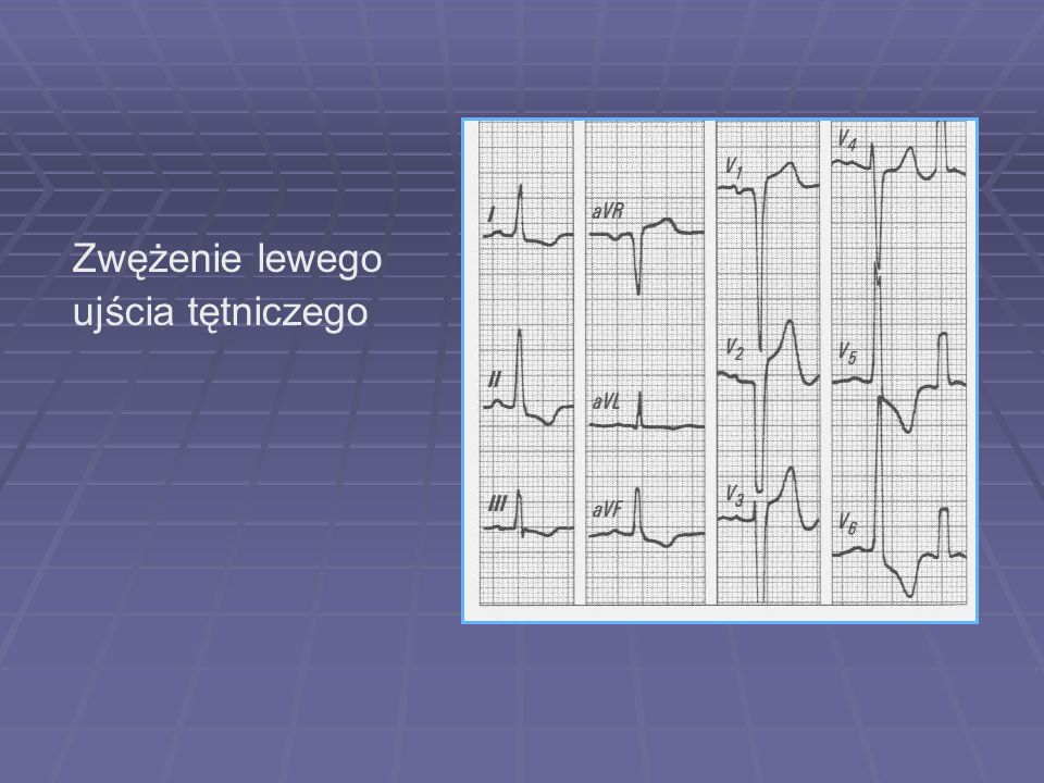Zwężenie lewego ujścia tętniczego