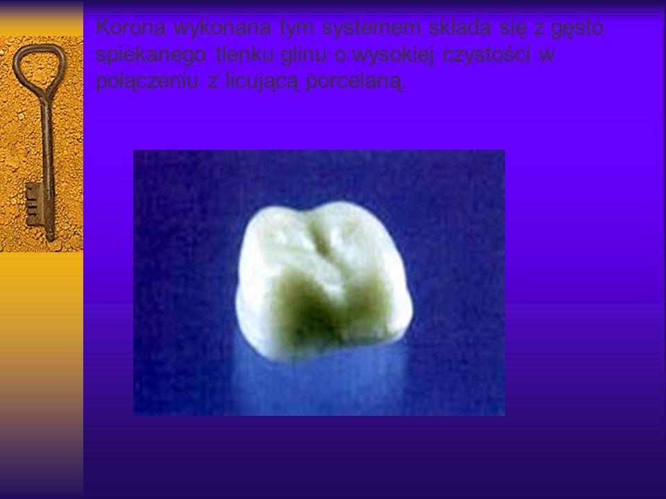 Korona wykonana tym systemem składa się z gęsto spiekanego tlenku glinu o wysokiej czystości w połączeniu z licującą porcelaną.