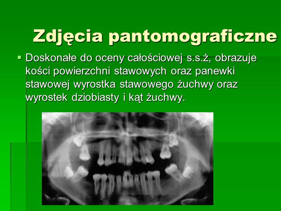 Zdjęcia pantomograficzne
