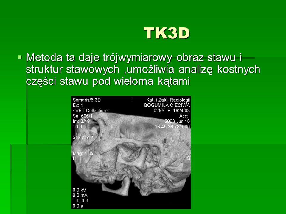 TK3D Metoda ta daje trójwymiarowy obraz stawu i struktur stawowych ,umożliwia analizę kostnych części stawu pod wieloma kątami.
