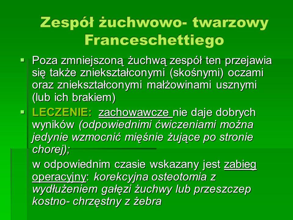 Zespół żuchwowo- twarzowy Franceschettiego