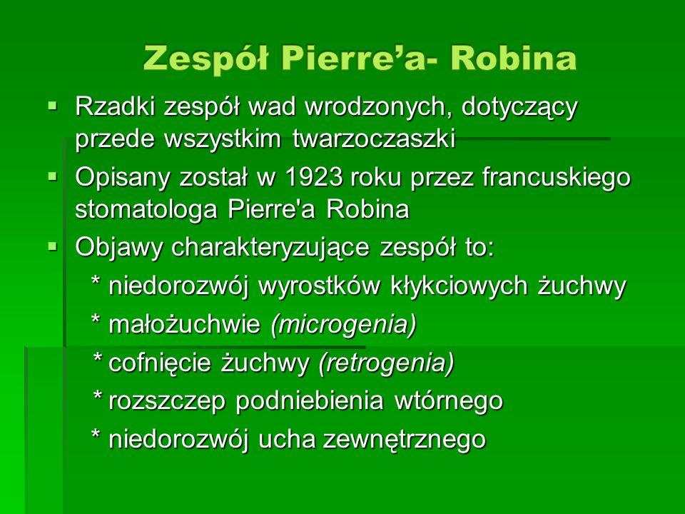 Zespół Pierre'a- Robina