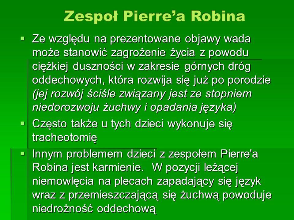 Zespoł Pierre'a Robina