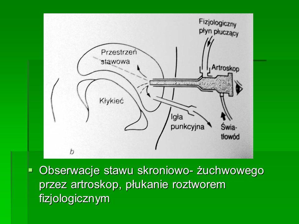 Obserwacje stawu skroniowo- żuchwowego przez artroskop, płukanie roztworem fizjologicznym