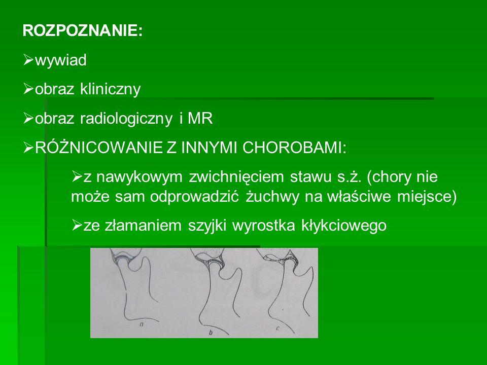 ROZPOZNANIE: wywiad. obraz kliniczny. obraz radiologiczny i MR. RÓŻNICOWANIE Z INNYMI CHOROBAMI: