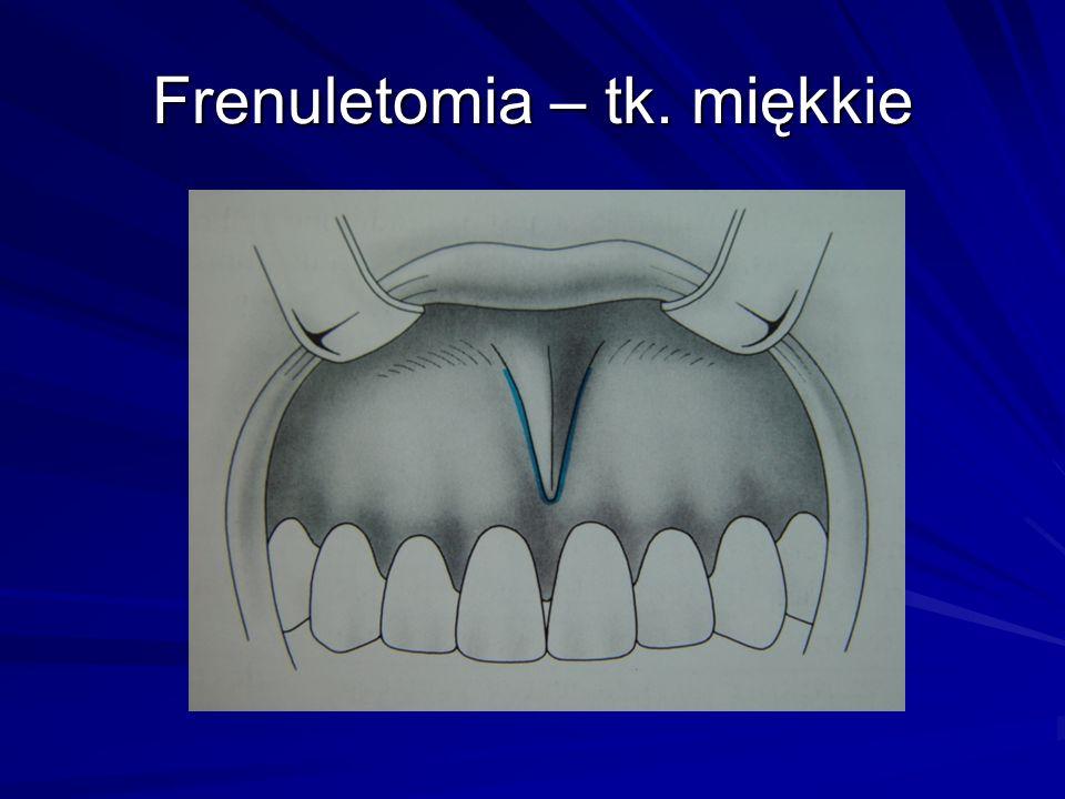 Frenuletomia – tk. miękkie