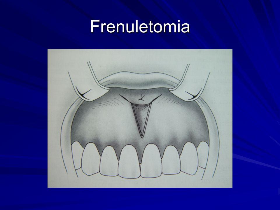 Frenuletomia