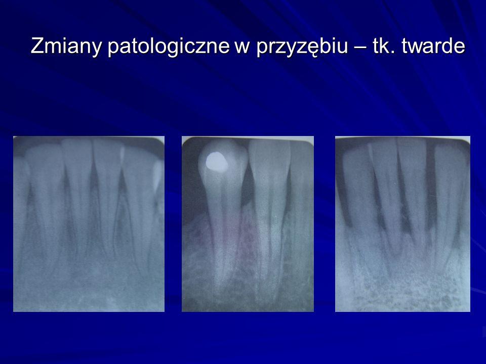 Zmiany patologiczne w przyzębiu – tk. twarde