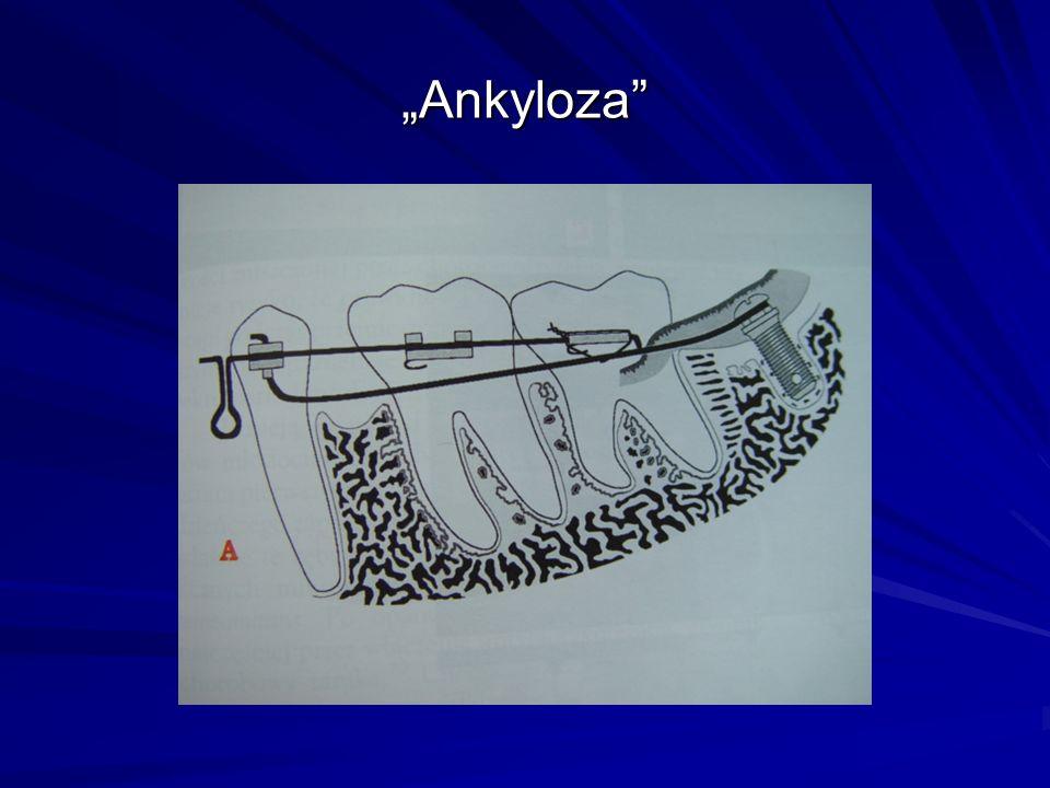 """""""Ankyloza"""