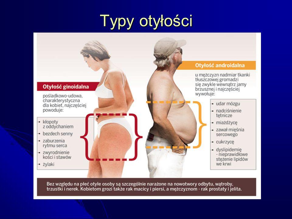Typy otyłości