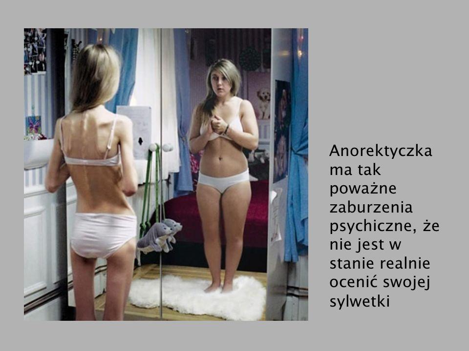 Anorektyczka ma tak poważne zaburzenia psychiczne, że nie jest w stanie realnie ocenić swojej sylwetki