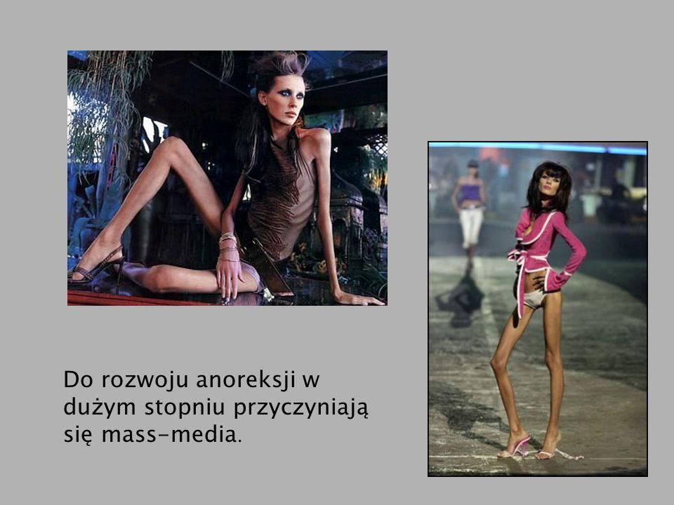 Do rozwoju anoreksji w dużym stopniu przyczyniają się mass-media.