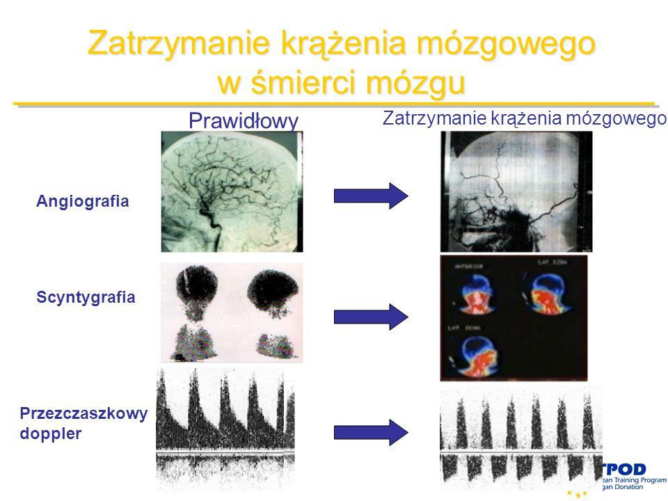 Zatrzymanie krążenia mózgowego w śmierci mózgu