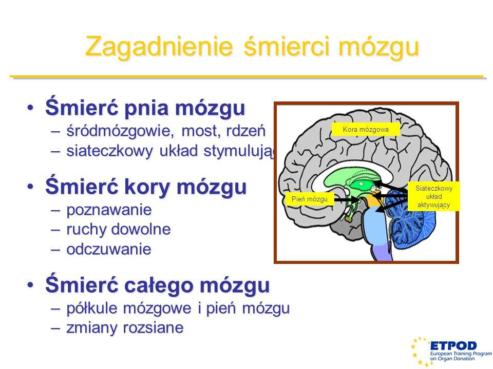 Zagadnienie śmierci mózgu
